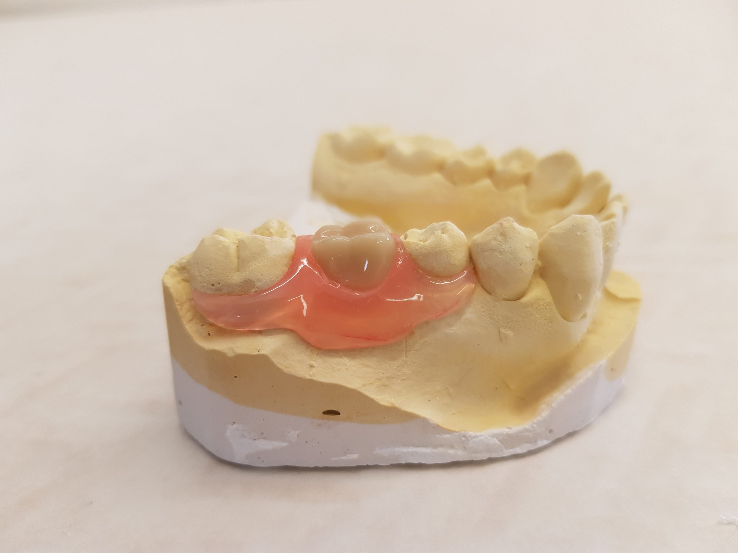 Valplast sectional denture